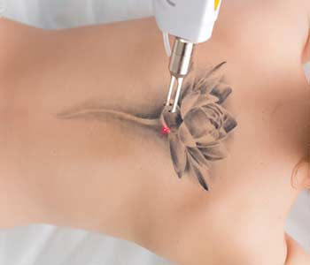 laser tattoo removal from back